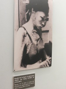Victim of U.S. napalm bomb.